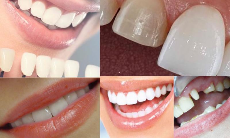 Zirkonyum Diş Kaplamanın Faydaları