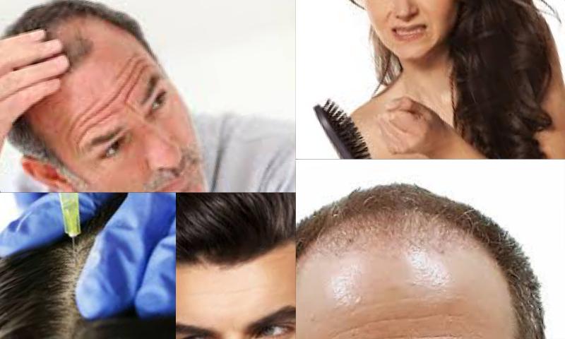 Hair Transplant Clinic İn Turkey Türkiyedeki En İyi Saç Ekim Kliniği
