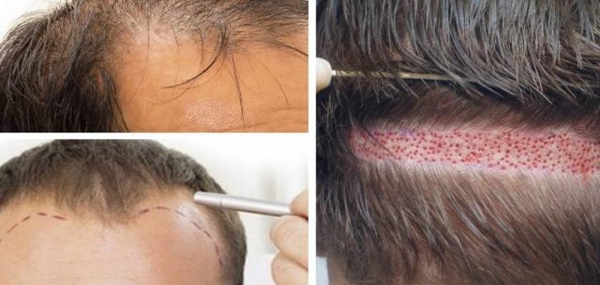 Saç Ekimi Sonrası Tedavi Sürecinin Takibi